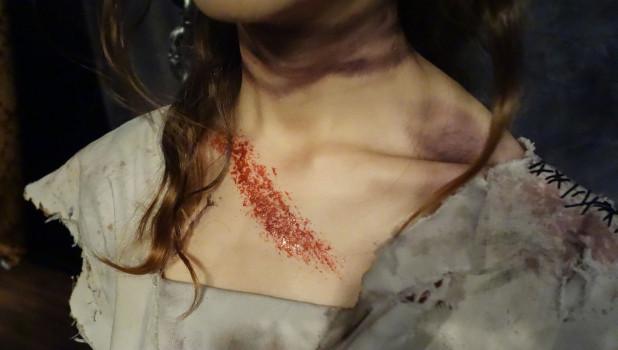 Женщина, травмы, насилие.