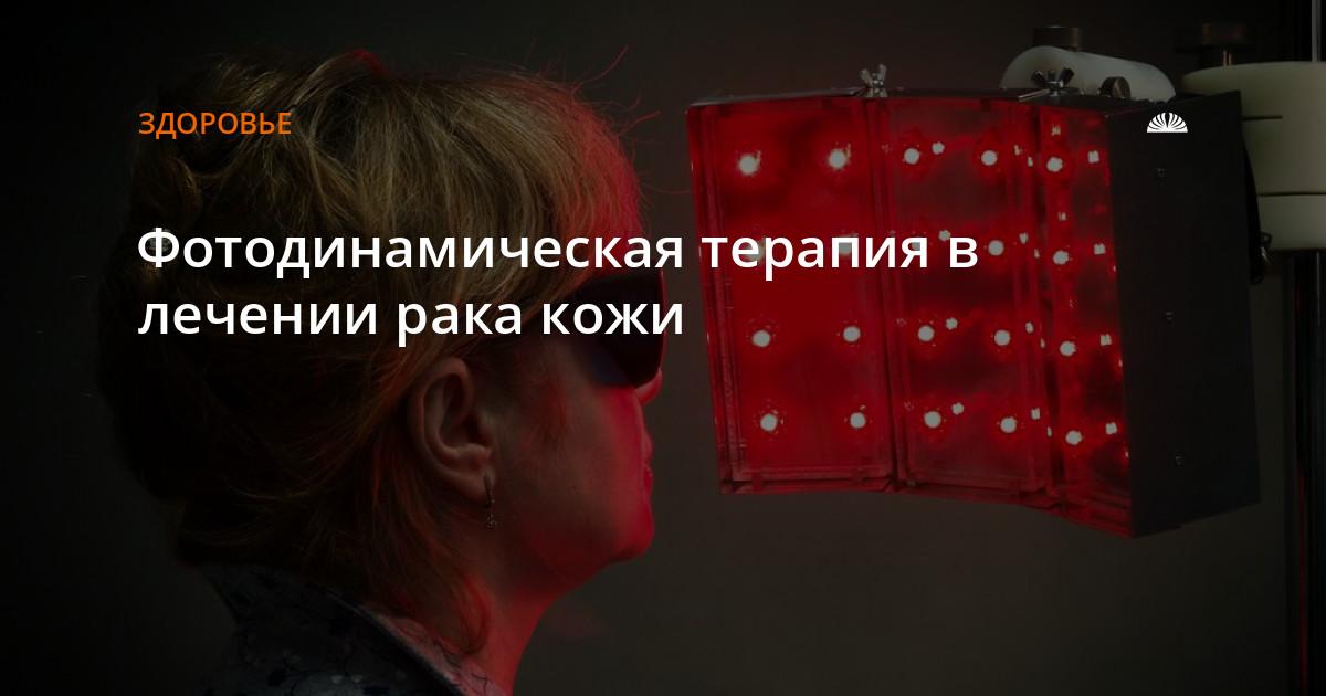 Фотодинамическая терапия (ФДТ) - лечение рака кожи и опухолей, цена в Москве.